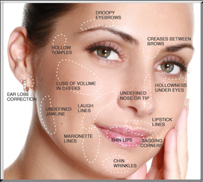 Botox Injections Austin Texas