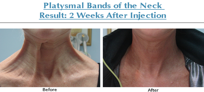 Botox Platysmal Band Neck Lift
