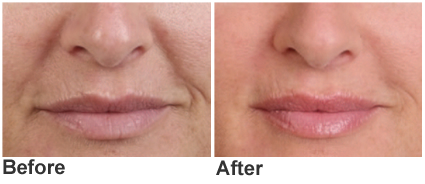 Cosmetic Filler Juvederm