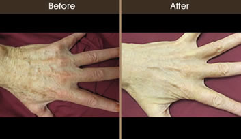 Remove age spots from hands