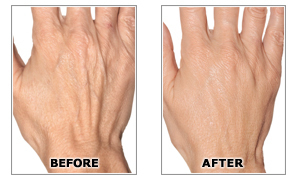 cosmetic_filler_hands