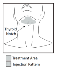 Kybella-treatment-Austin