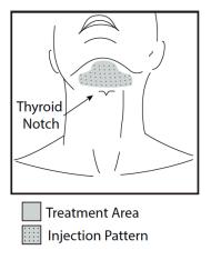 Kybella-treatment-Austin
