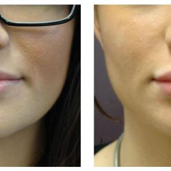 WHAT TO DO BEFORE LIP FILLER